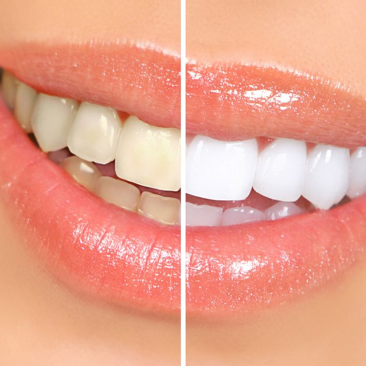 A before and after of whitened teeth
