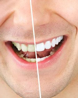 Albuquerque Zoom Teeth Whitening Treatment