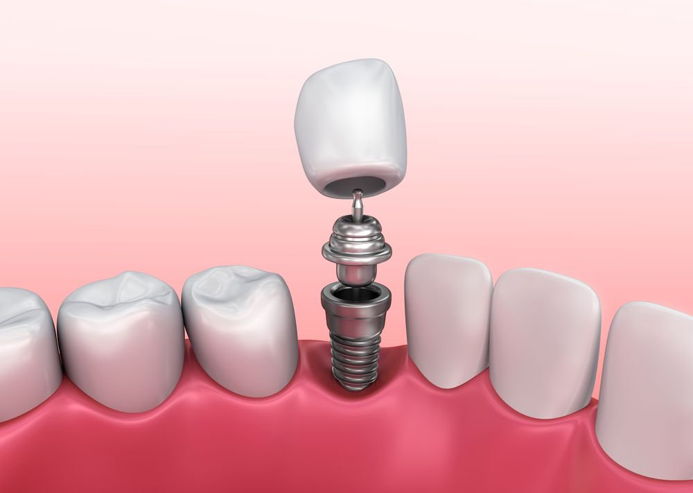 Digital illustration of dental implant, abutment, and crown being placed
