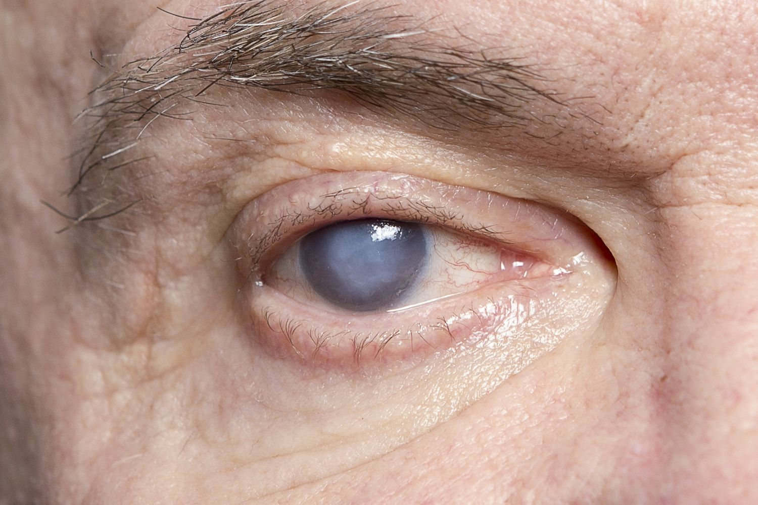 Clouded right eye of elderly man shows signs of cataracts