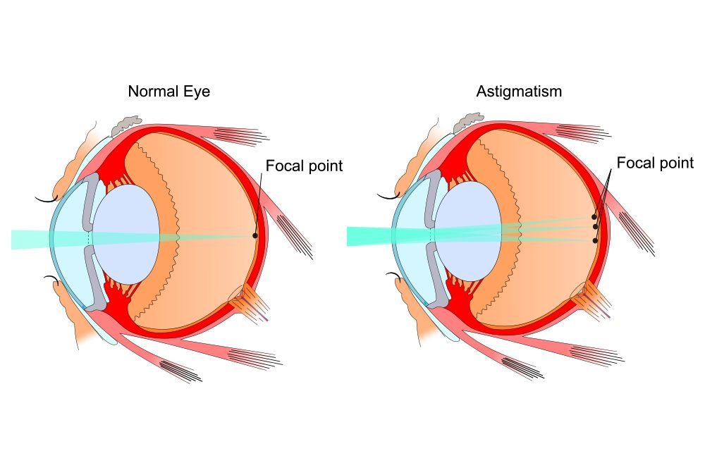 Diagram demonstrating how light is focused onto the retina in a normal eye and distributed irregularly in an eye with astigmatism.