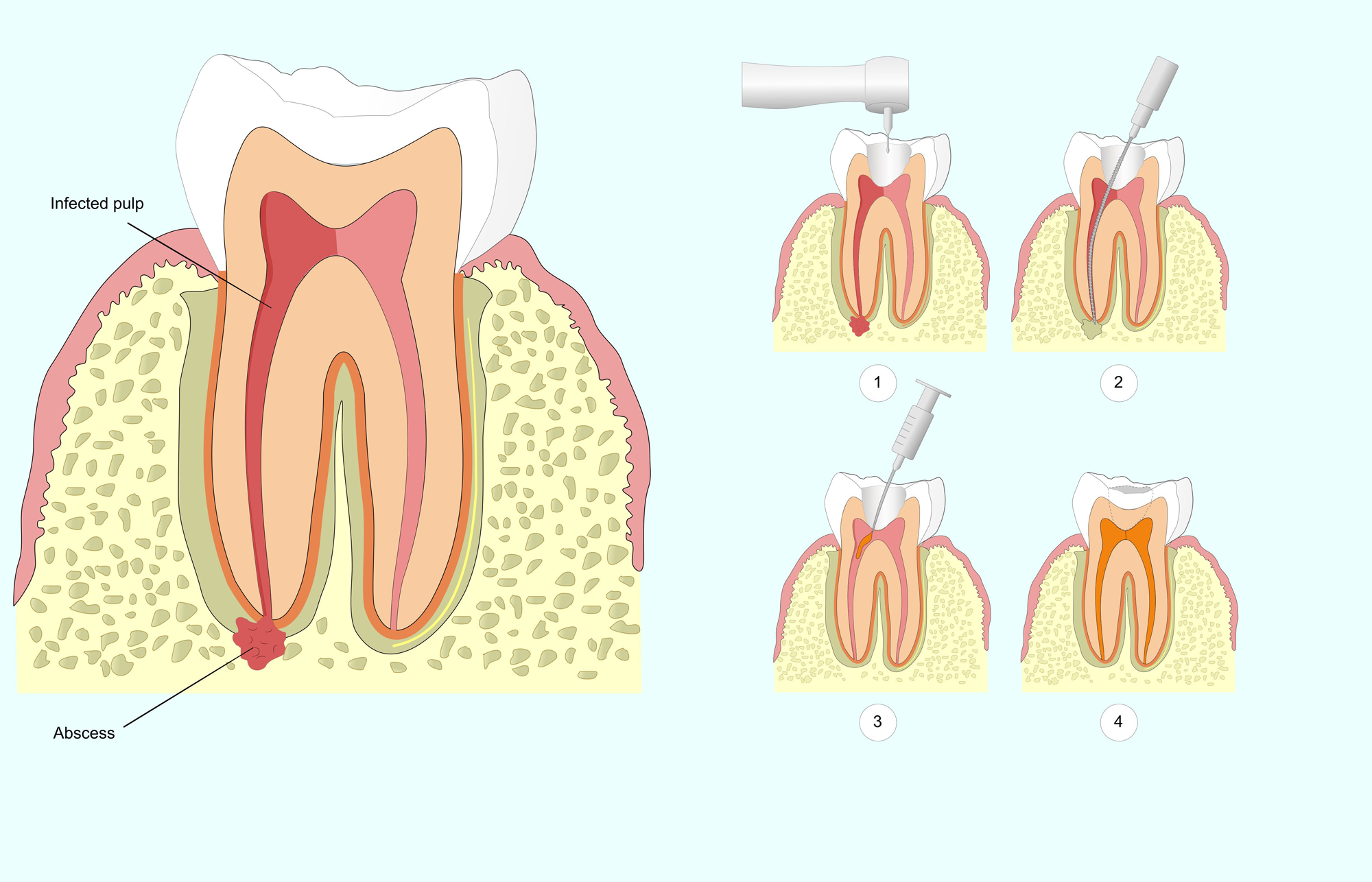 Digital image showing steps of endodontic treatment