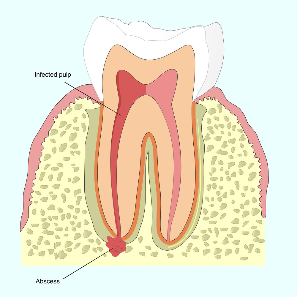 Illustration of a tooth with a root canal infection