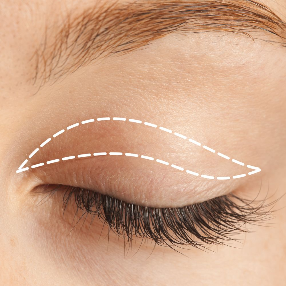 Incisions for upper eyelid surgery