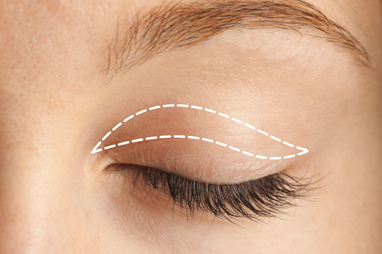 Incisions in an upper eyelid surgery