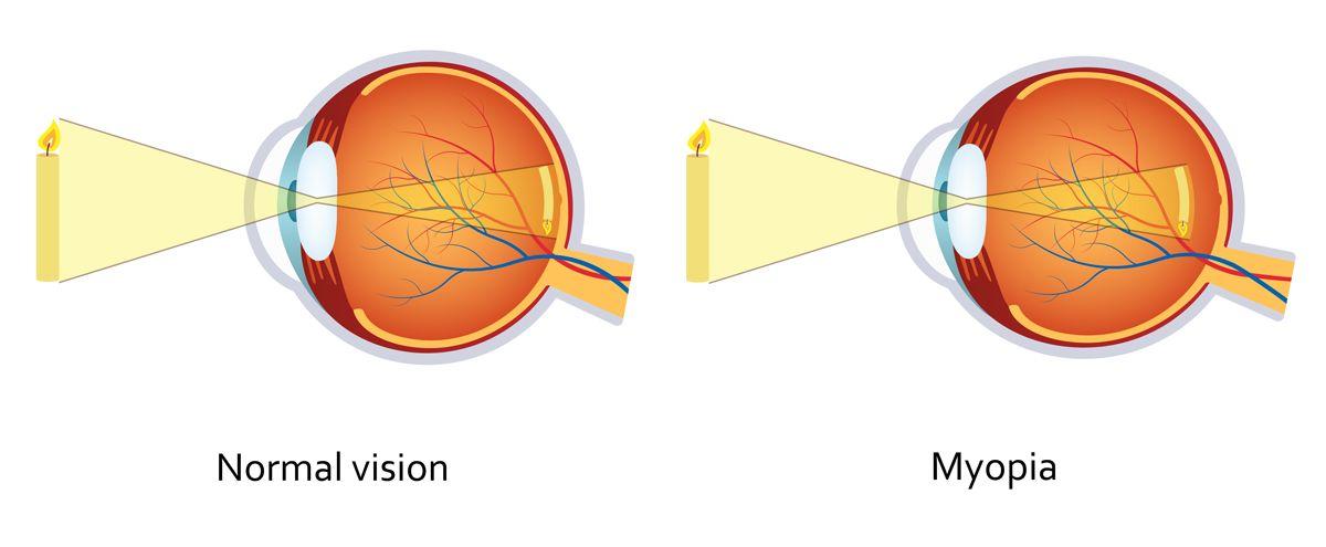 digital illustration comparing normal vision to myopia