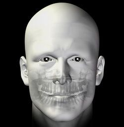 Bald avatar's face and x-ray view of teeth