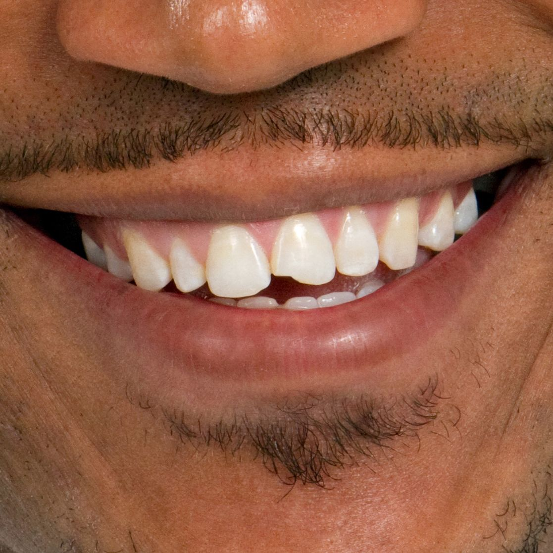 Man smiling with chipped front tooth