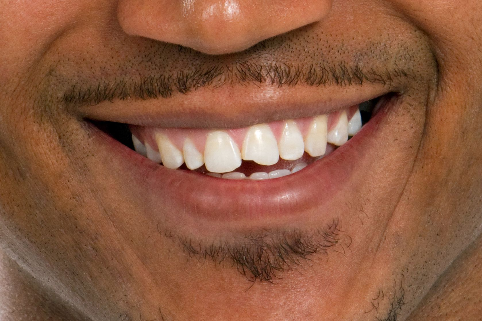 Photo of a smile with a chipped tooth