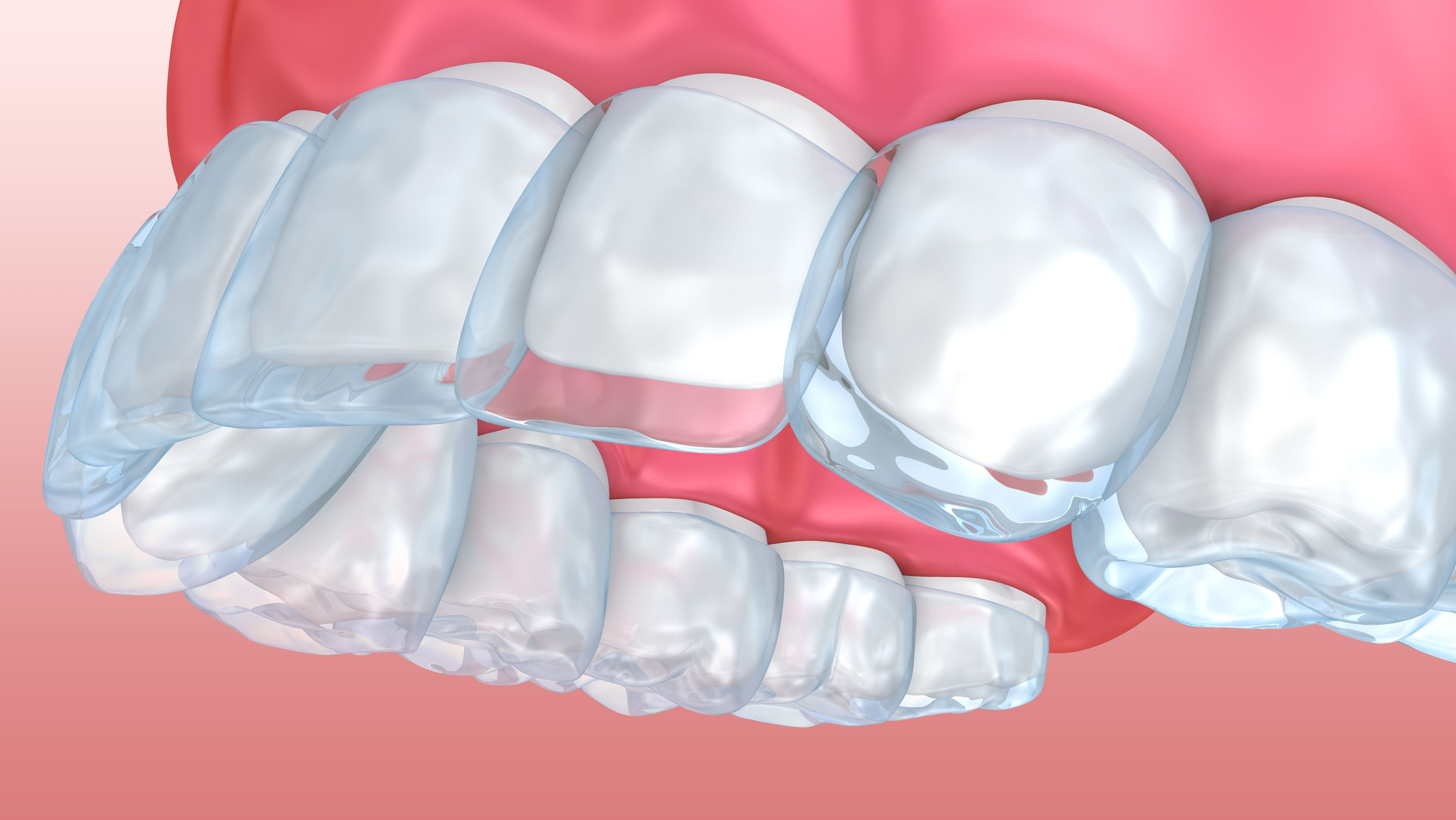 Digital image of Invisalign® tray being placed over teeth