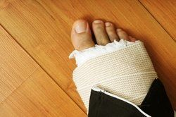 Man's bandaged foot after a bone fracture during a construction accident