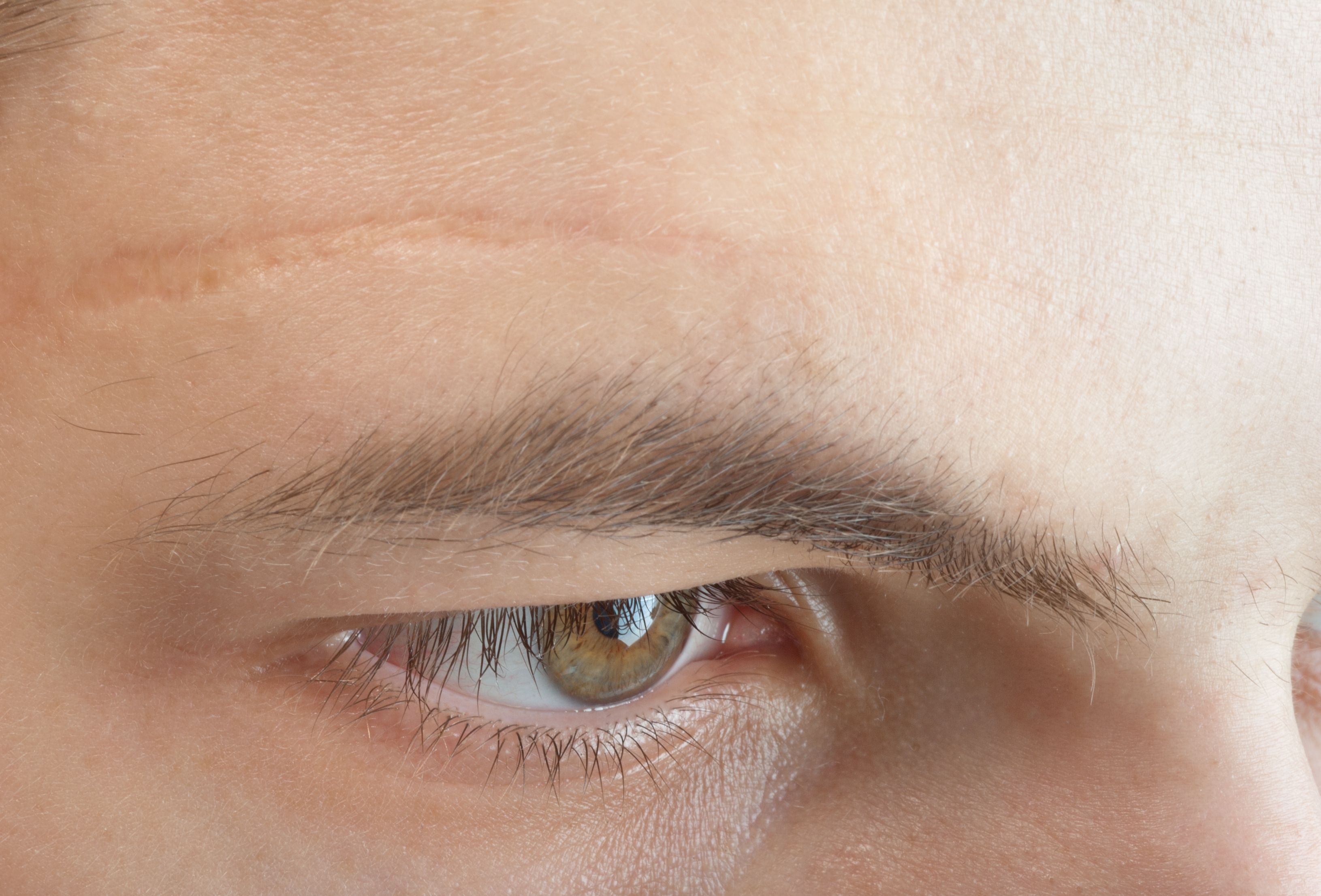 Faded scar