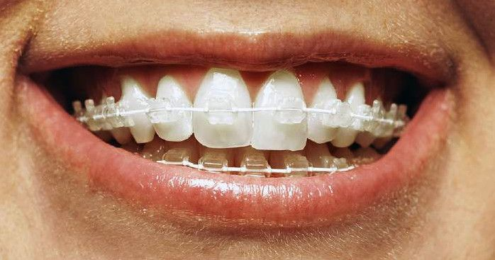 A close up of Six Month Smile braces