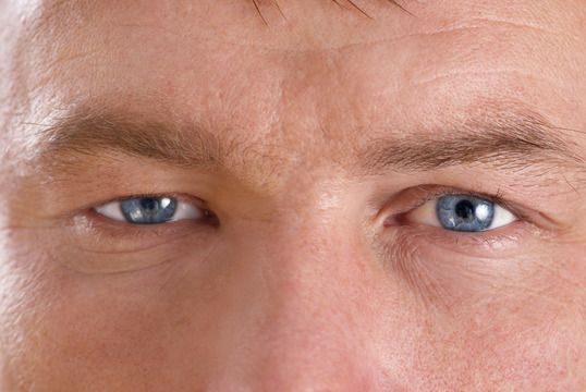 man with ptosis