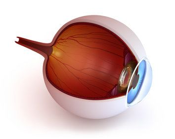 A keratoconus illustration