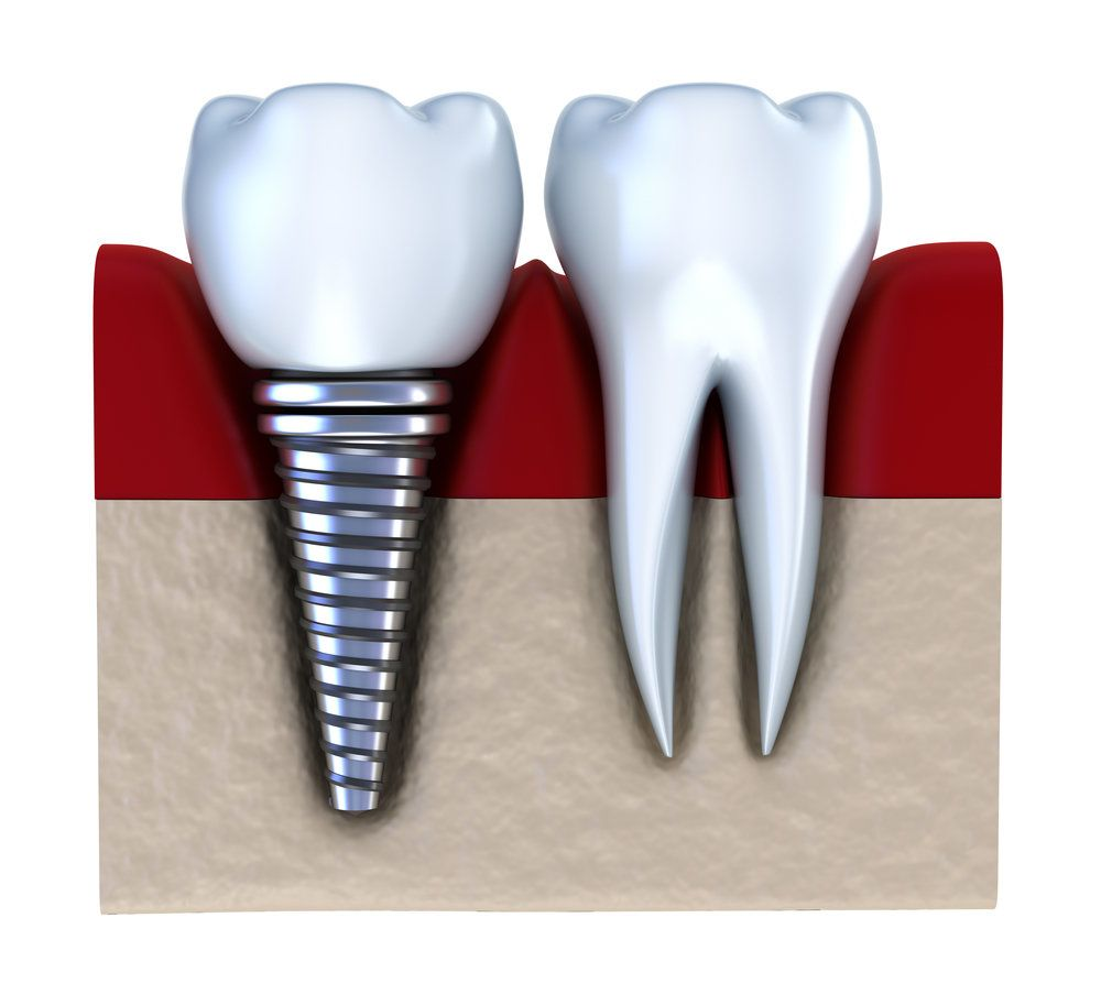 A crown supported by a dental implant