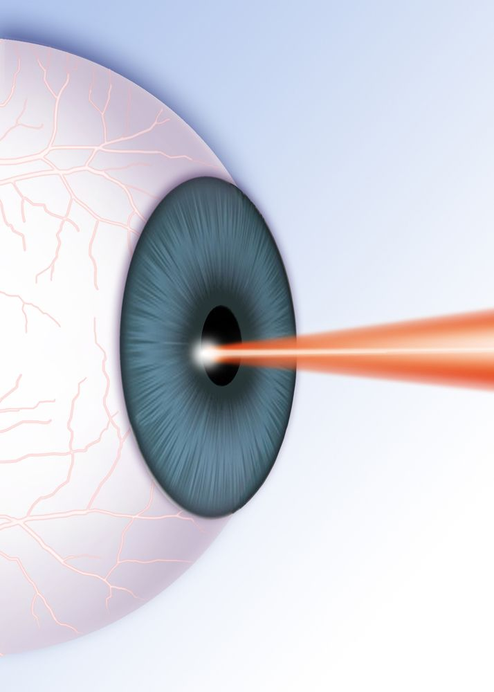 Illustration of a laser correcting a patient's eye