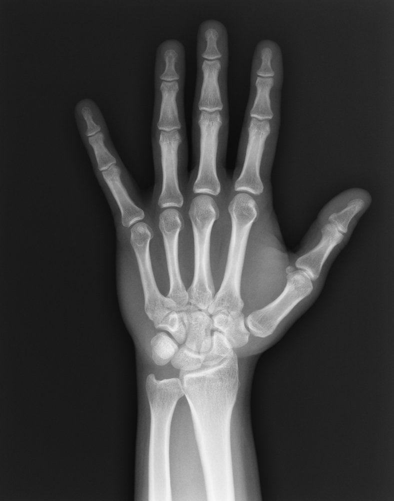An x-ray of the hand