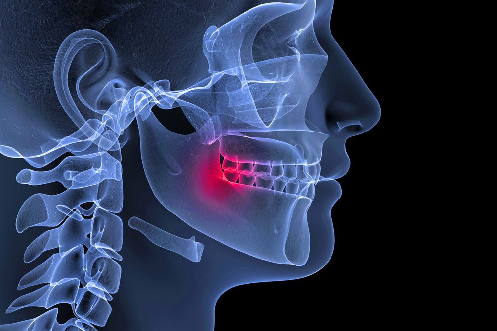 Digital x-ray demonstrating TMJ pain
