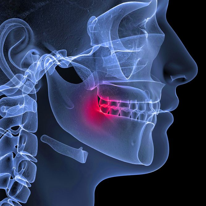 A jaw pain x-ray
