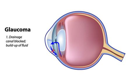 A simplified diagram showing an eye with glaucoma.