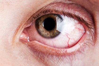 A closeup view of an eyeball suffering with allergies.