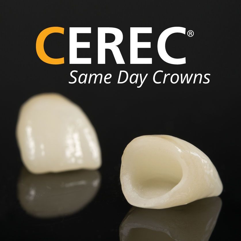 CEREC same-day dental crowns