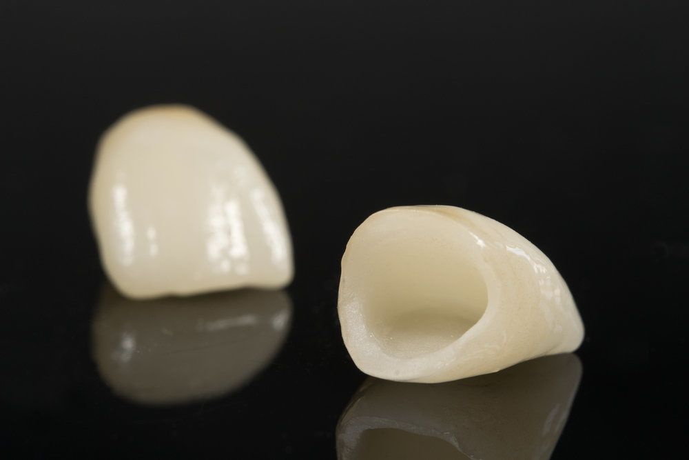 Two dental crowns on shiny black surface