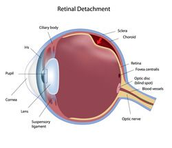 A graph of an eye with a detached retina