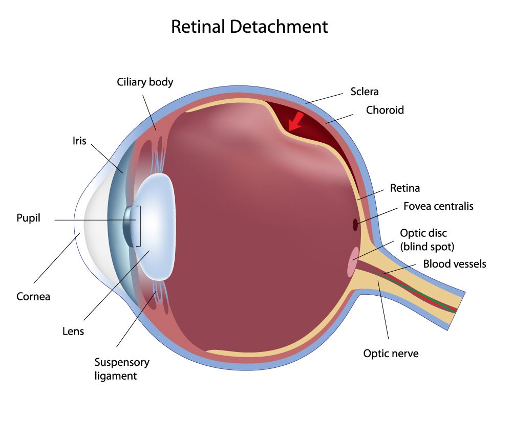 Illustration of retinal detachment