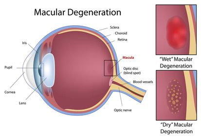 A simplified diagram showing macular degeneration.