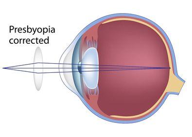 An eye with corrected presbyopia.