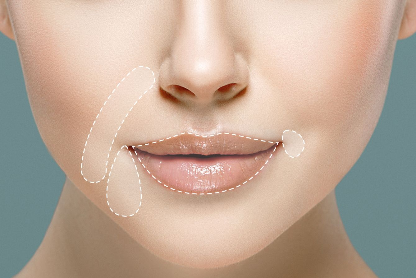 Juvederm cosmetic injection sites