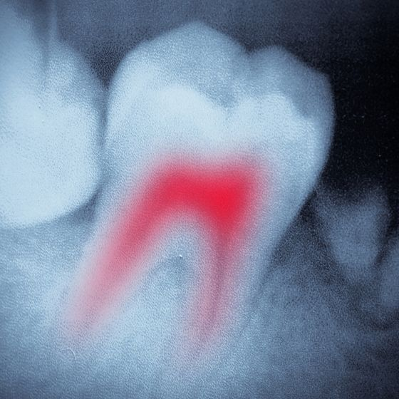 A root canal infection
