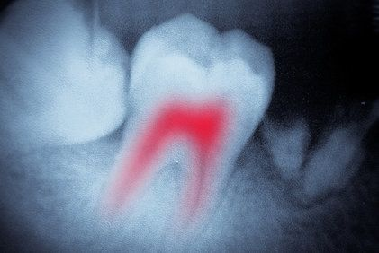 X-ray showing red, infected root canal