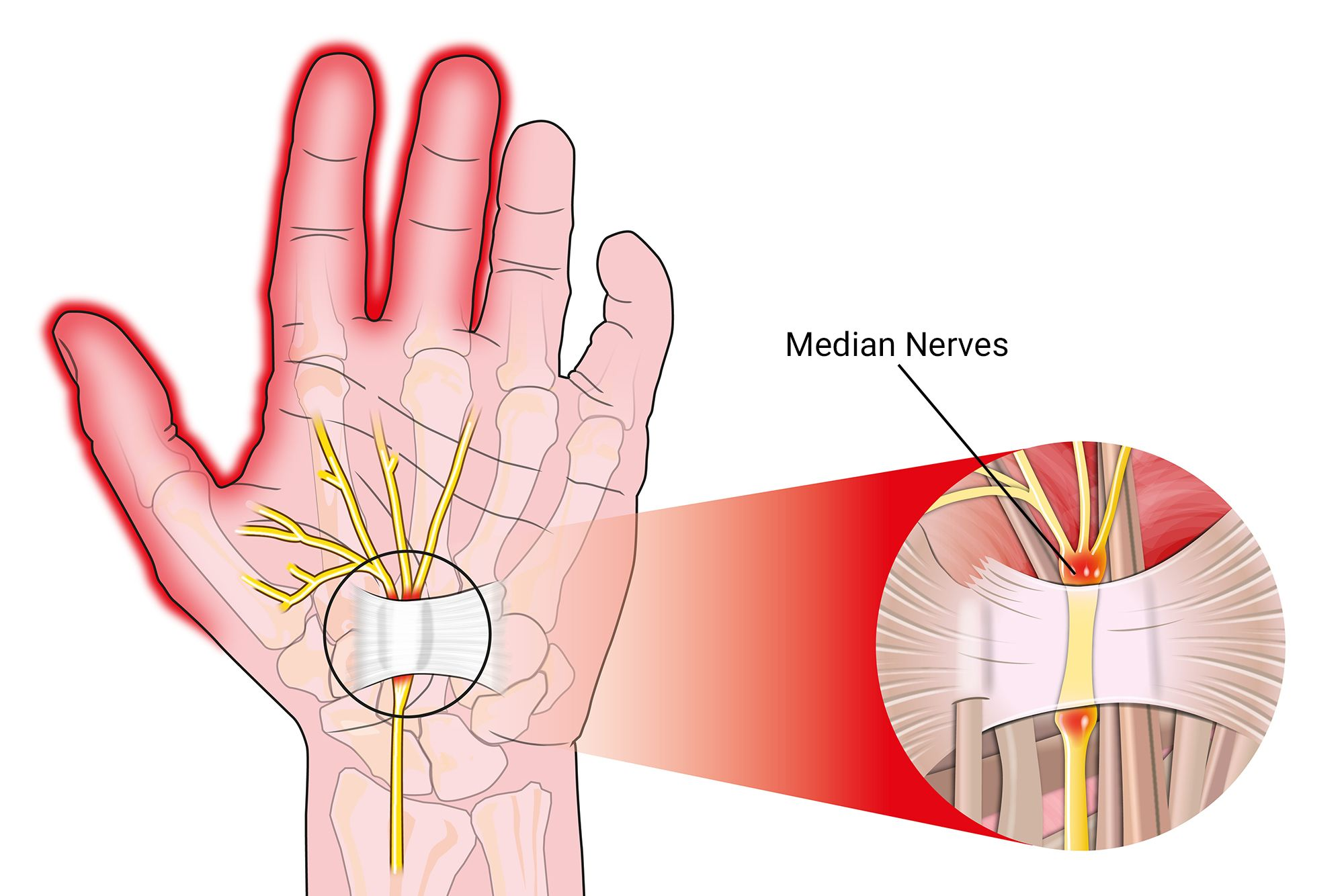 illustration of a hand affected by carpal tunnel syndrome