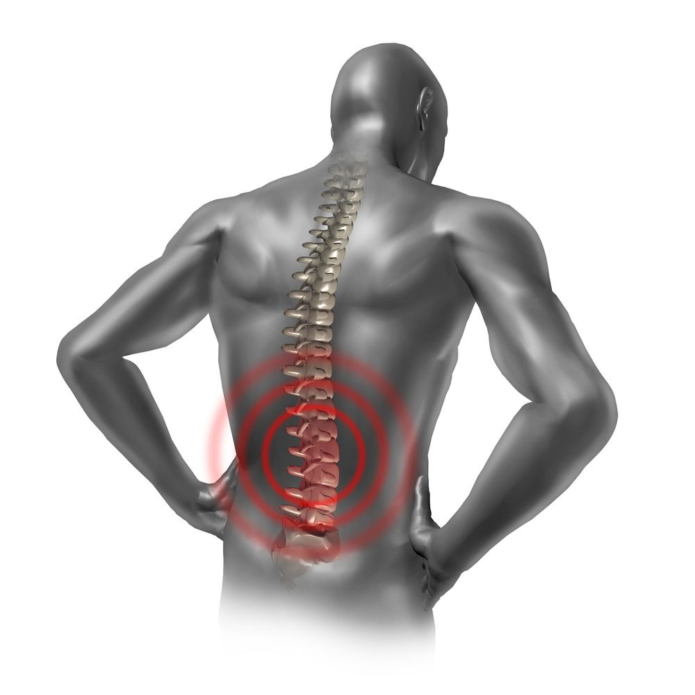 An illustration of an injured back