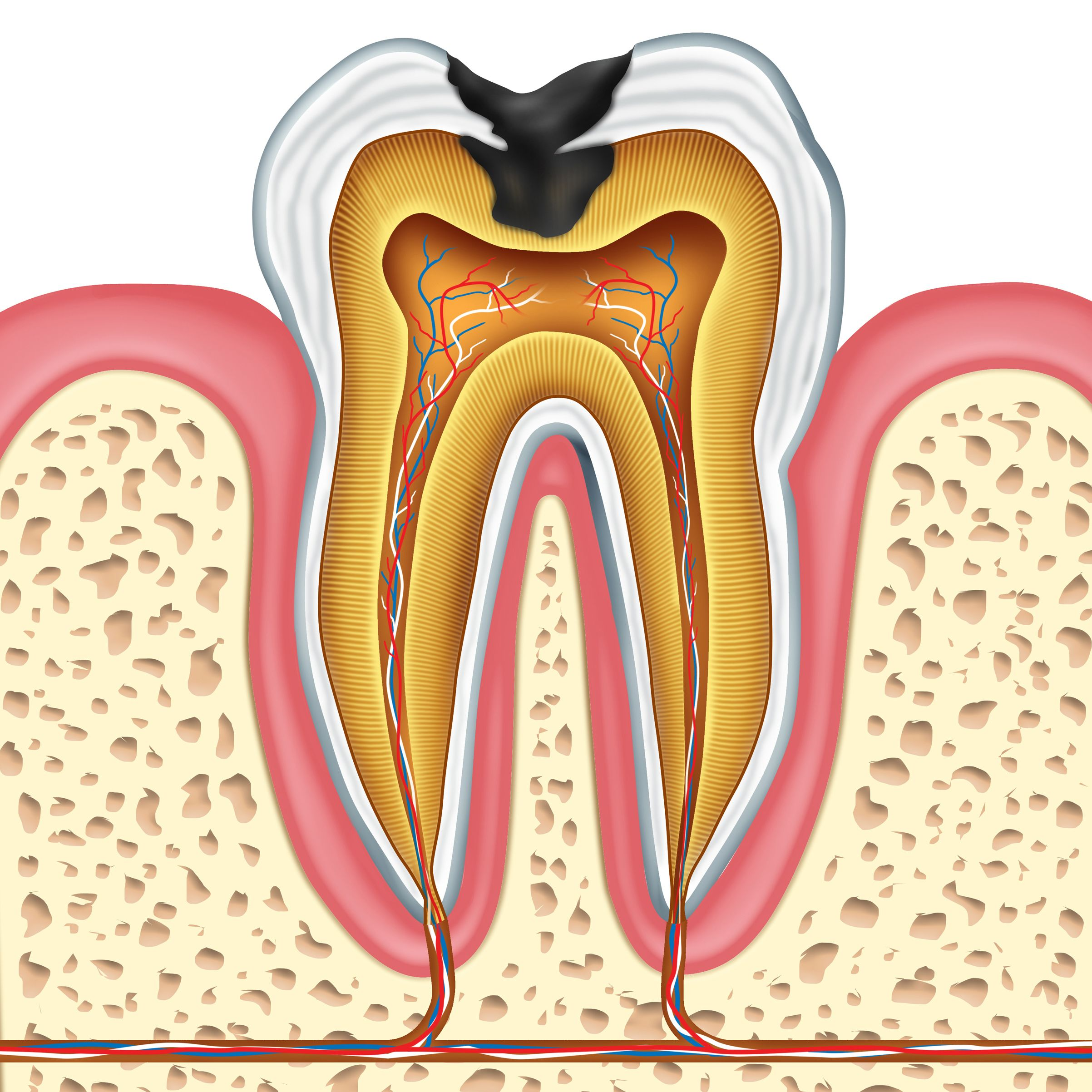 An illustration of a tooth with a cavity