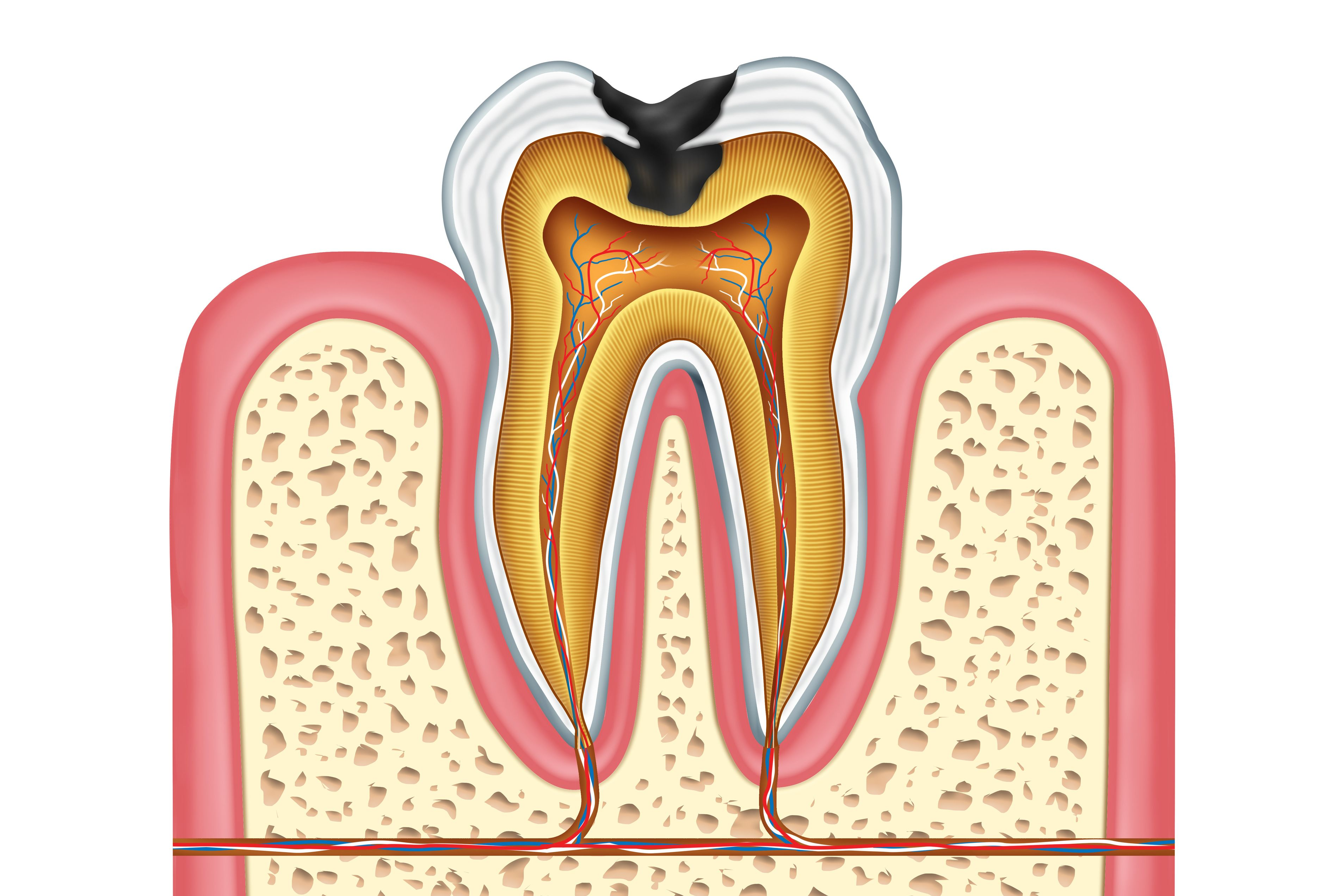 A cross-section of a tooth with a cavity