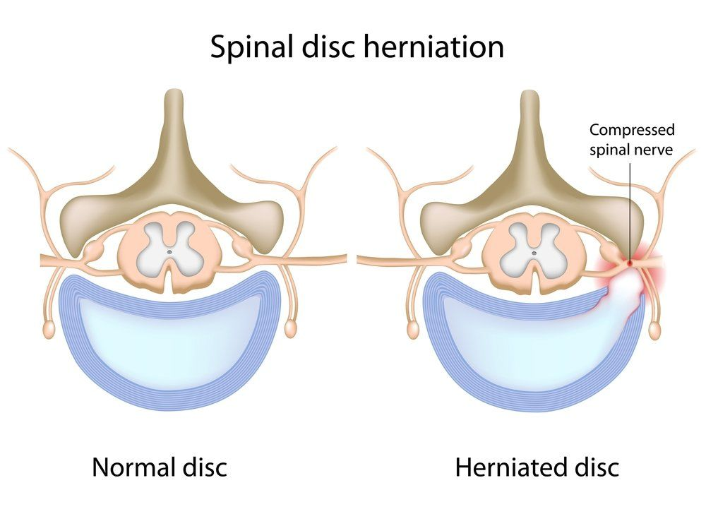 An illustration of a normal disk next to a herniated disk
