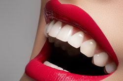 Bells Porcelain Veneers Risks