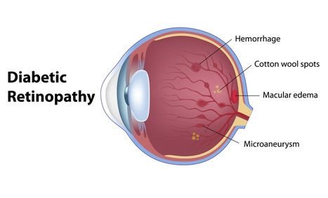 A simplified diagram showing an eye with diabetic retinopathy.