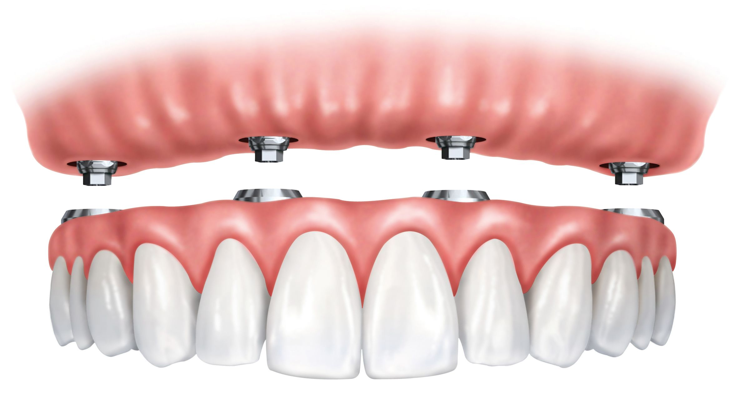All-on-4 denture and dental implants