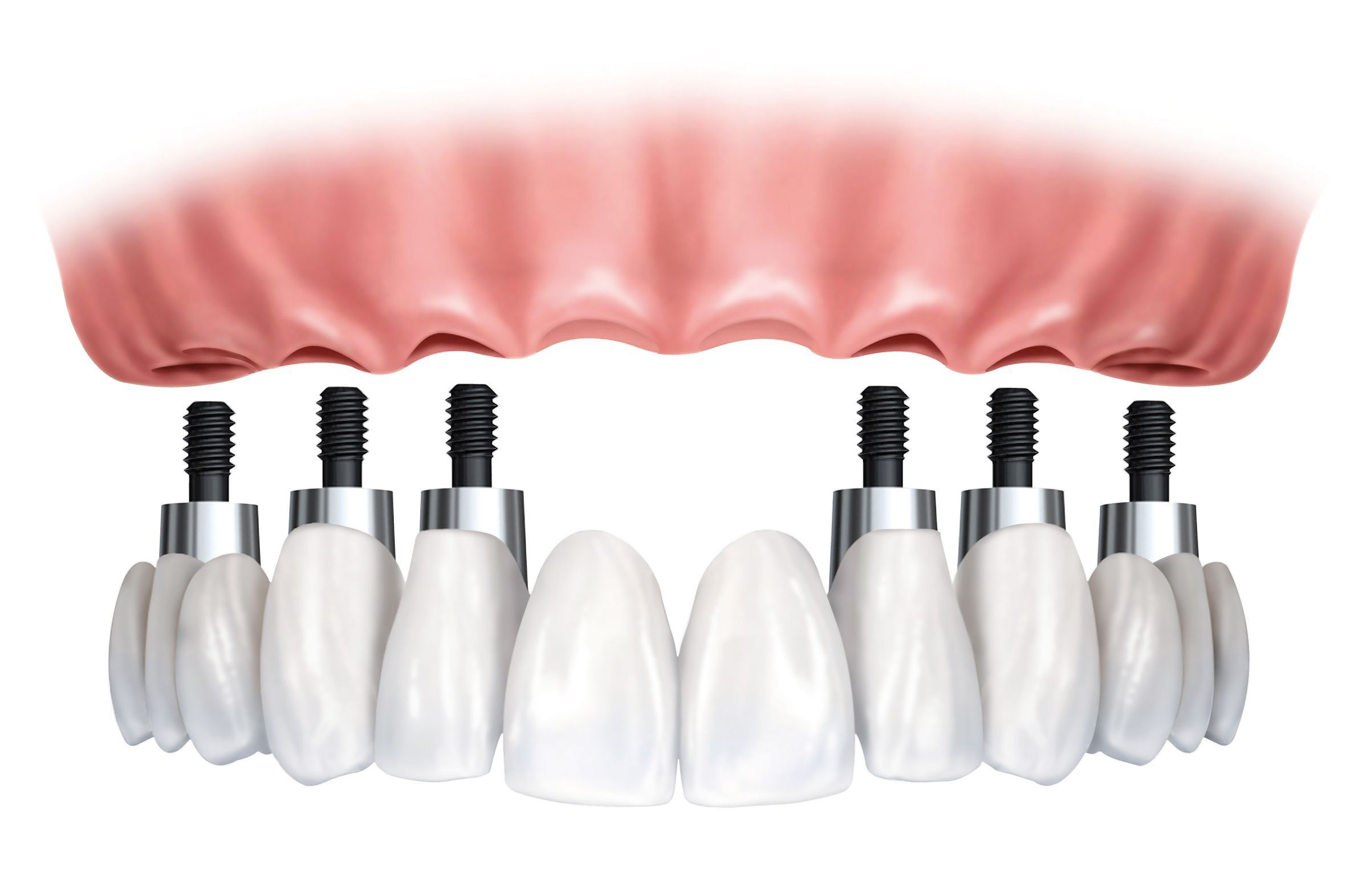 Implant-supported denture hovers below six dental implants