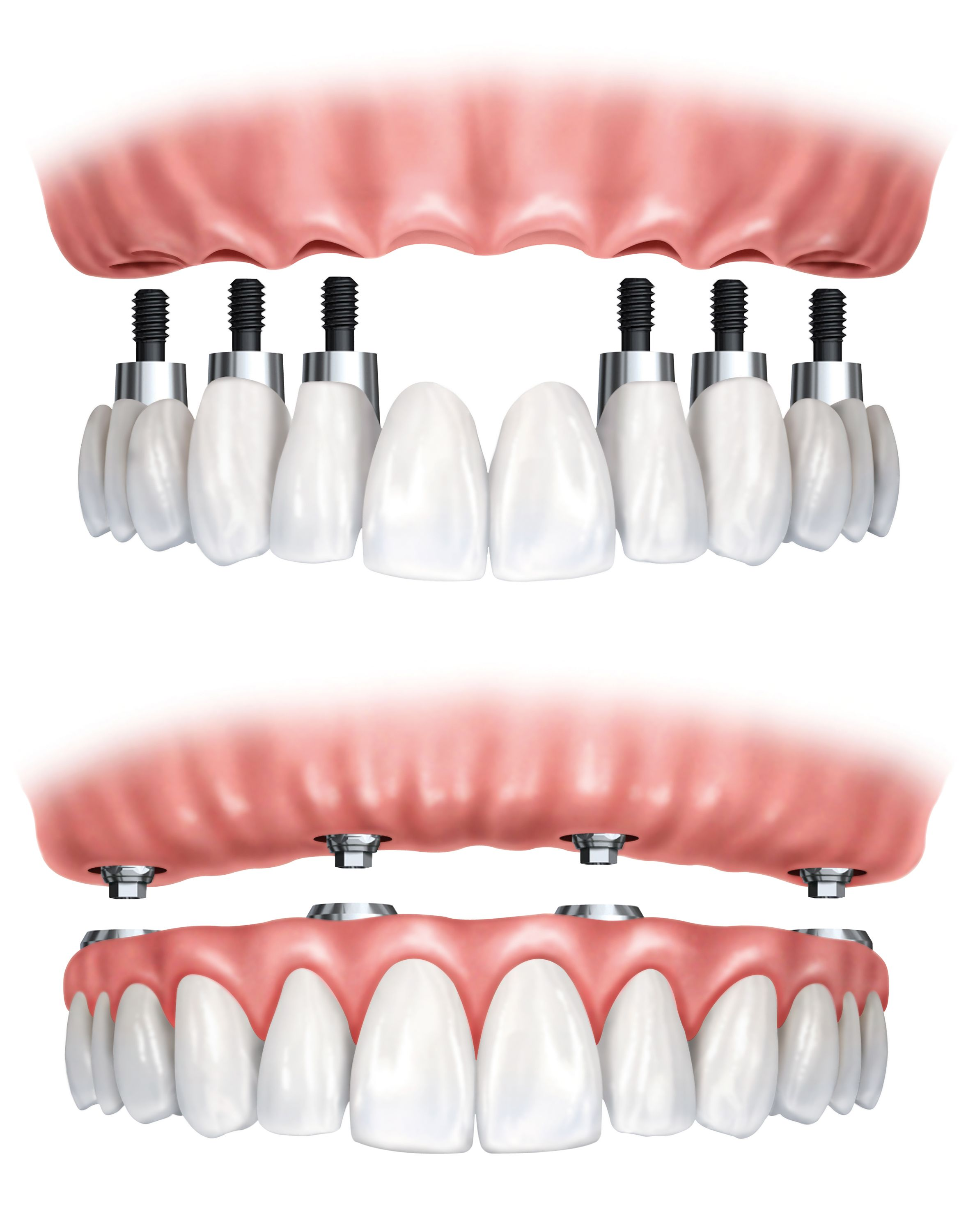 Digital image of a fixed full-arch prosthesis and an implant-supported snap-on denture