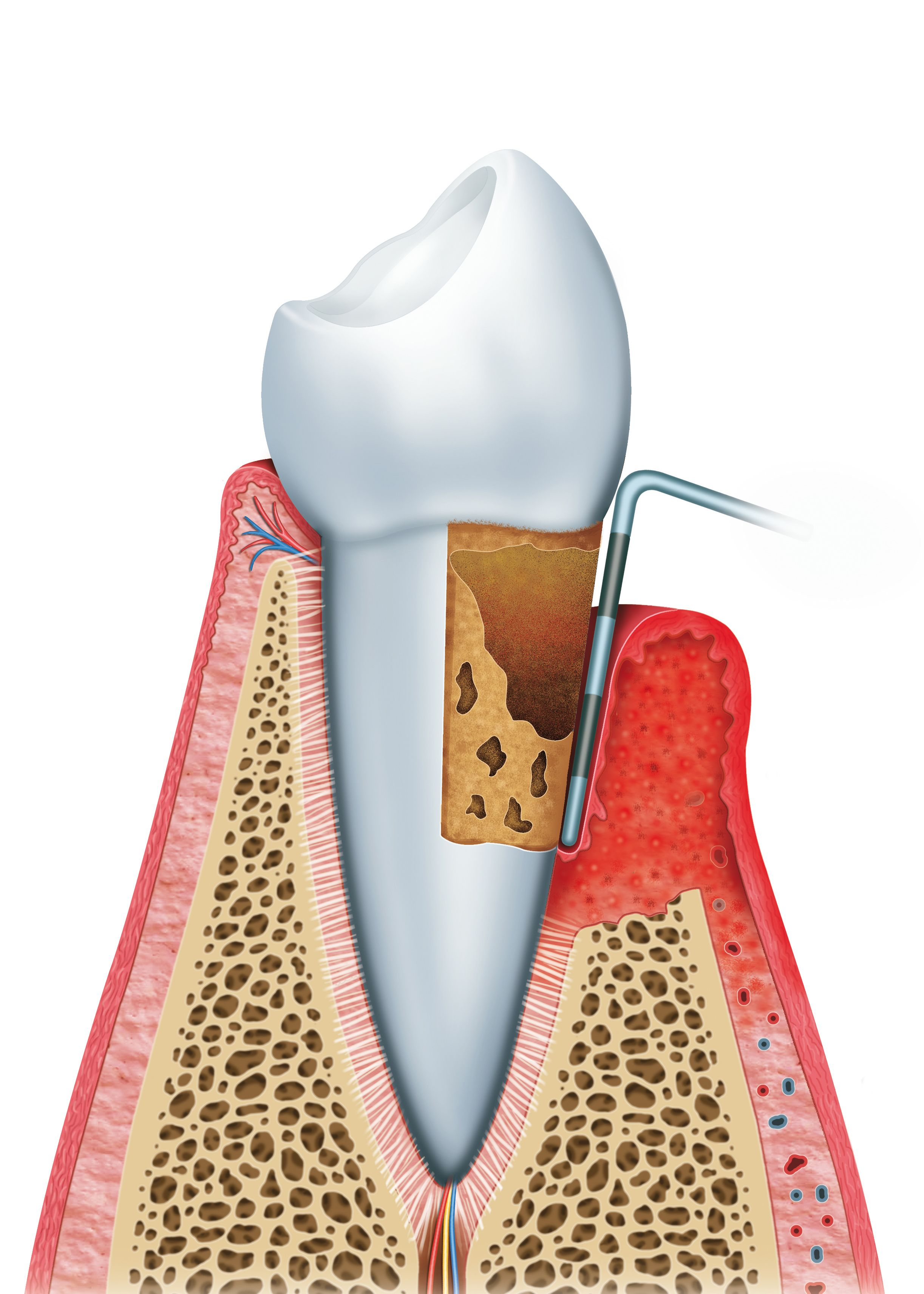 Illustration of a periodontal procedure