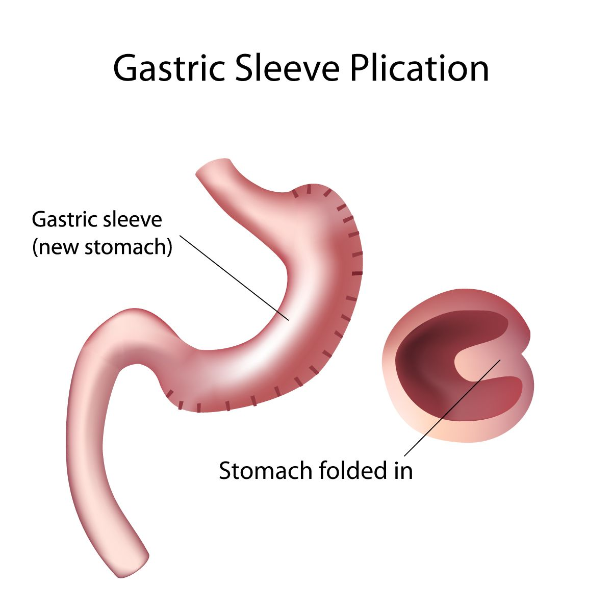 Illustration of the stomach after gastric plication surgery