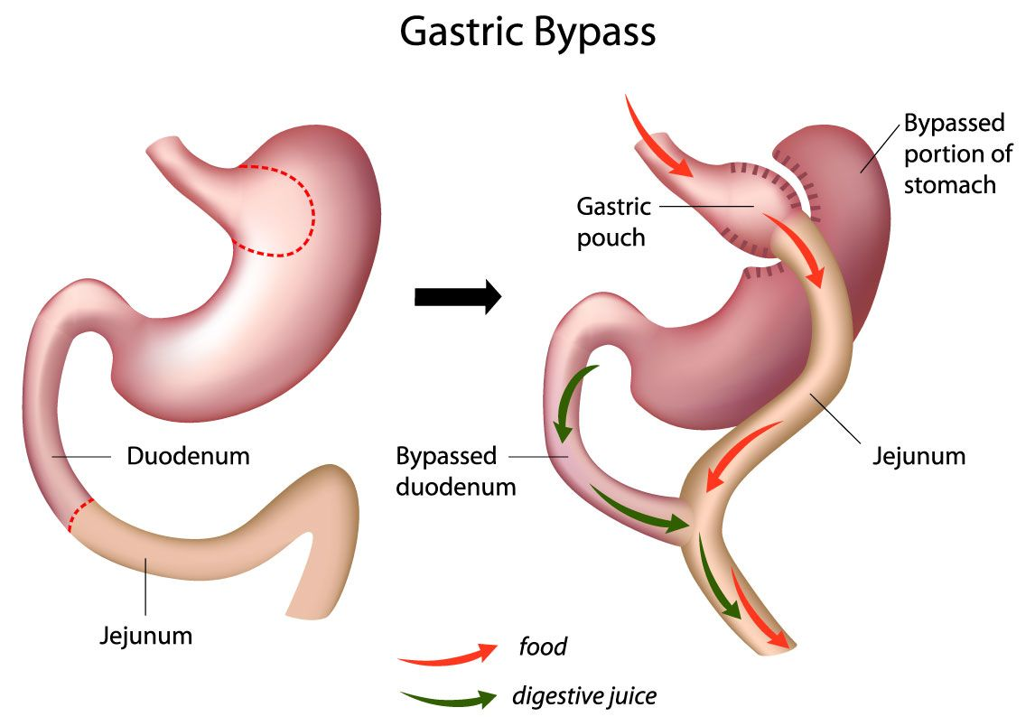 A diagram of a gastric bypass