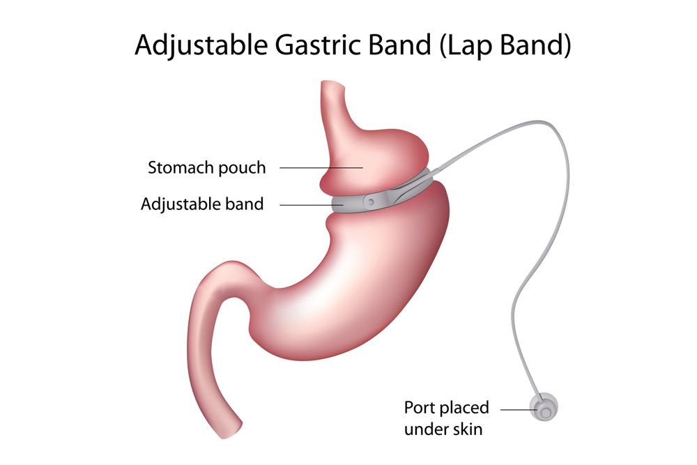 Gastric banding surgery