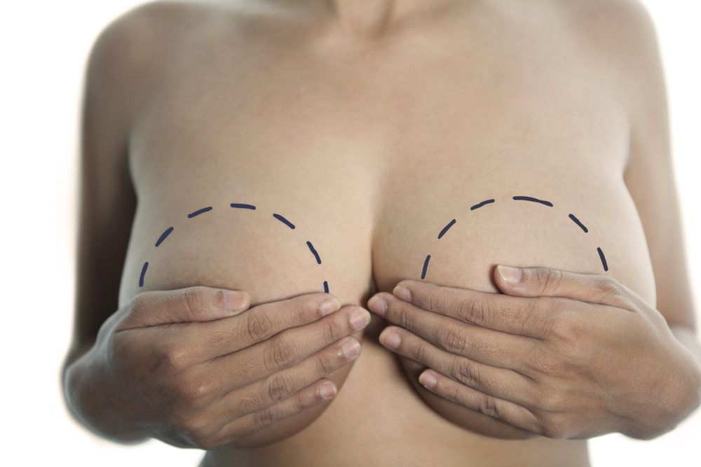 Close-up of a woman's breasts, the nipples concealed by her hands, marked up for breast augmentation by a felt-tipped pen